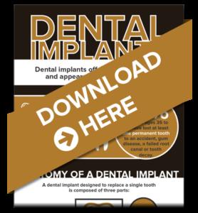 Download dental implants guide