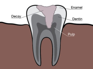 Mukilteo Family Dentistry
