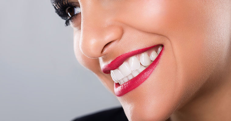 Close up of young woman smiling with the benefits of cosmetic dentistry.